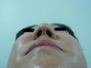 東京銀座のレティシアクリニック 鼻尖縮小 症例1-1