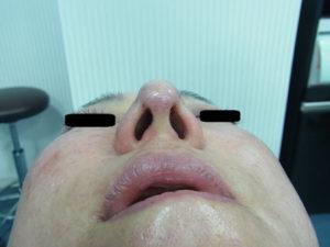東京銀座のレティシアクリニック 鼻尖縮小 症例1-2