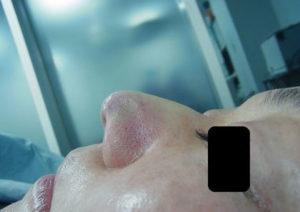 東京銀座のレティシアクリニック 鼻尖縮小 症例1-4
