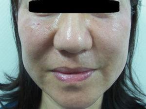 東京銀座のレティシアクリニック 鼻尖縮小 症例1-5