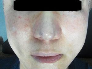 東京銀座のレティシアクリニック 鼻尖縮小 症例1-6