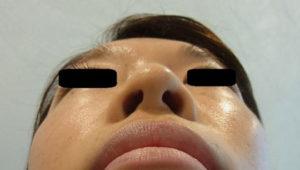 東京銀座のレティシアクリニック 鼻尖縮小 症例2-1
