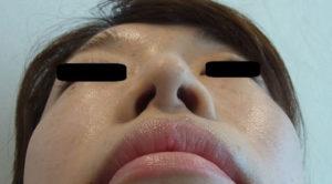 東京銀座のレティシアクリニック 鼻尖縮小 症例2-2