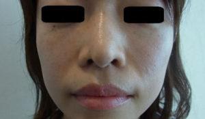 東京銀座のレティシアクリニック 鼻尖縮小 症例2-4