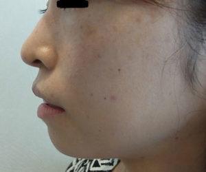 東京銀座のレティシアクリニック 鼻尖縮小 症例2-6