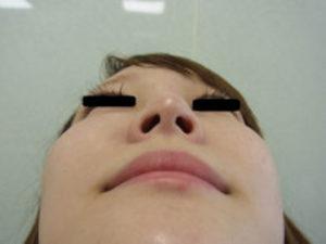 東京銀座のレティシアクリニック 鼻尖縮小 症例3-1