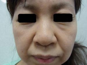 東京銀座のレティシアクリニック 鼻尖縮小 症例4-1