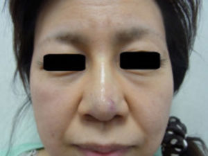 東京銀座のレティシアクリニック 鼻尖縮小 症例4-2