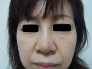 東京銀座のレティシアクリニック 鼻尖縮小 症例4-3