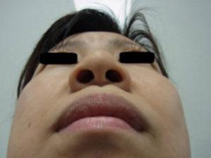 東京銀座のレティシアクリニック 鼻尖縮小 症例4-4