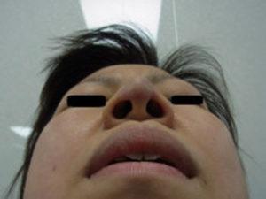 東京銀座のレティシアクリニック 鼻尖縮小 症例4-5