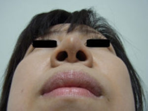 東京銀座のレティシアクリニック 鼻尖縮小 症例4-6