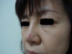 東京銀座のレティシアクリニック 鼻尖縮小 症例4-7