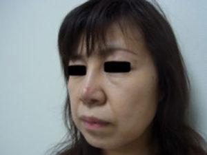 東京銀座のレティシアクリニック 鼻尖縮小 症例4-8