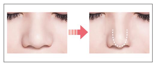 東京銀座のレティシアクリニック 鼻尖形成