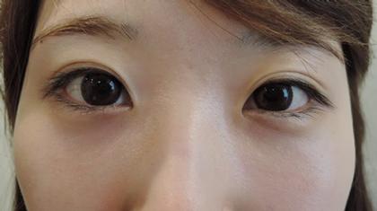 東京銀座のレティシアクリニック 【切らない】目の下のクマたるみ取り 症例1-2