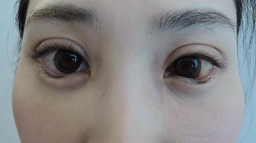 東京銀座のレティシアクリニック グラマラスライン形成 症例1-2