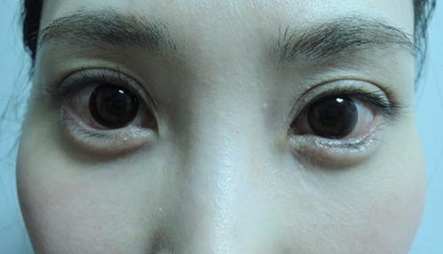 東京銀座のレティシアクリニック グラマラスライン形成 症例1-3