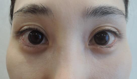 東京銀座のレティシアクリニック グラマラスライン形成 症例1-4