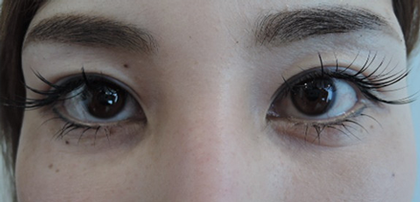 東京銀座のレティシアクリニック 【切らない】目の下のクマたるみ取り 症例2-2