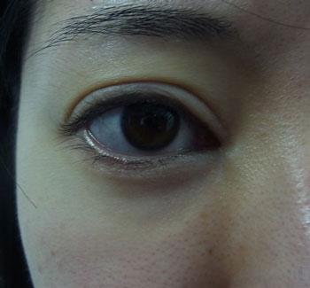 東京銀座のレティシアクリニック グラマラスライン形成 症例2-1