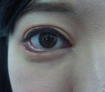 東京銀座のレティシアクリニック グラマラスライン形成 症例2-2