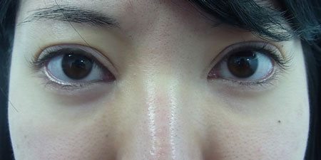 東京銀座のレティシアクリニック グラマラスライン形成 症例2-5