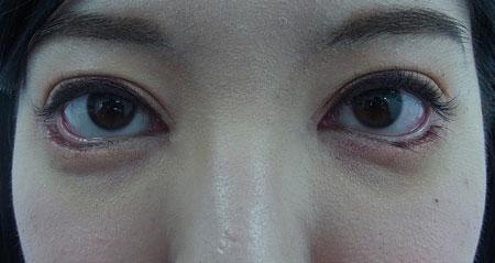 東京銀座のレティシアクリニック グラマラスライン形成 症例2-6