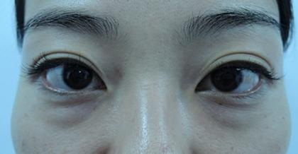 東京銀座のレティシアクリニック 【切らない】目の下のクマたるみ取り 症例3-1