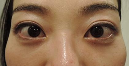 東京銀座のレティシアクリニック 【切らない】目の下のクマたるみ取り 症例3-2