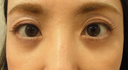東京銀座のレティシアクリニック 【切らない】目の下のクマたるみ取り 症例4-2