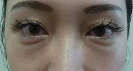 東京銀座のレティシアクリニック グラマラスライン形成 症例3-5