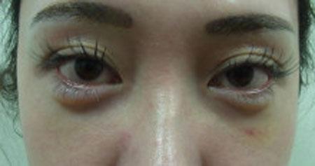 東京銀座のレティシアクリニック グラマラスライン形成 症例3-6