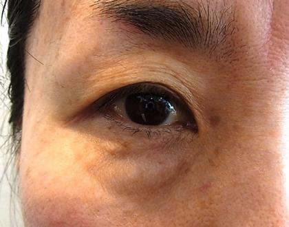 東京銀座のレティシアクリニック 【切らない】目の下のクマたるみ取り 症例5-1
