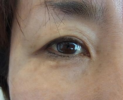 東京銀座のレティシアクリニック 【切らない】目の下のクマたるみ取り 症例5-2
