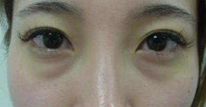 東京銀座のレティシアクリニック 【切らない】目の下のクマたるみ取り 症例6-1