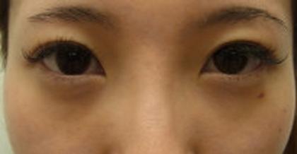 東京銀座のレティシアクリニック 【切らない】目の下のクマたるみ取り 症例6-2