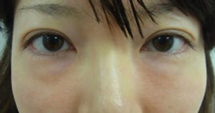 東京銀座のレティシアクリニック 【切らない】目の下のクマたるみ取り 症例7-1