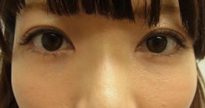 東京銀座のレティシアクリニック 【切らない】目の下のクマたるみ取り 症例7-2