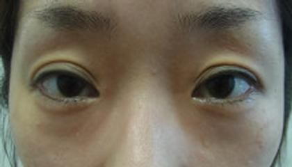 東京銀座のレティシアクリニック 【切らない】目の下のクマたるみ取り 症例8-1