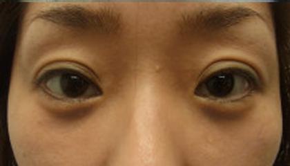 東京銀座のレティシアクリニック 【切らない】目の下のクマたるみ取り 症例8-2