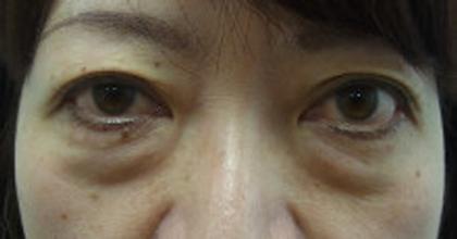 東京銀座のレティシアクリニック 【切らない】目の下のクマたるみ取り 症例9-1