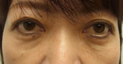 東京銀座のレティシアクリニック 【切らない】目の下のクマたるみ取り 症例9-2