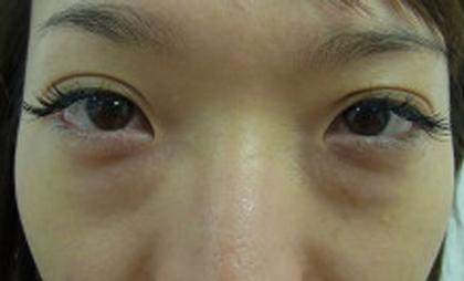 東京銀座のレティシアクリニック 【切らない】目の下のクマたるみ取り 症例10-1