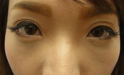 東京銀座のレティシアクリニック 【切らない】目の下のクマたるみ取り 症例10-2