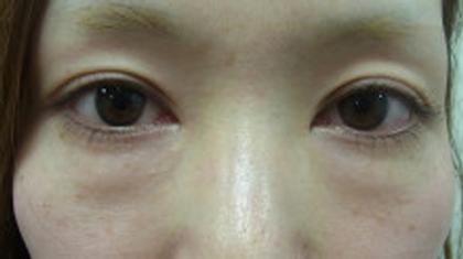 東京銀座のレティシアクリニック 【切らない】目の下のクマたるみ取り 症例11-1