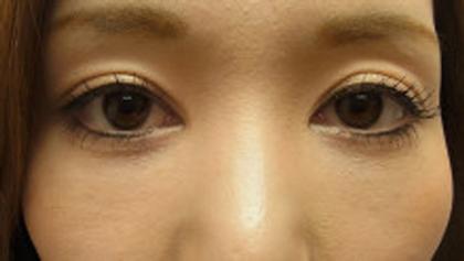 東京銀座のレティシアクリニック 【切らない】目の下のクマたるみ取り 症例11-2