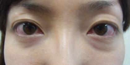 東京銀座のレティシアクリニック 【切らない】目の下のクマたるみ取り 症例12-1