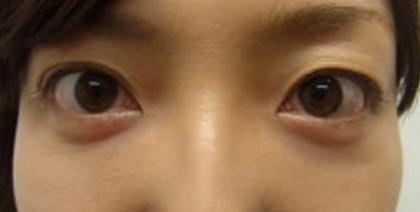 東京銀座のレティシアクリニック 【切らない】目の下のクマたるみ取り 症例12-2