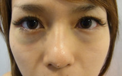 東京銀座のレティシアクリニック 【切らない】目の下のクマたるみ取り 症例13-1